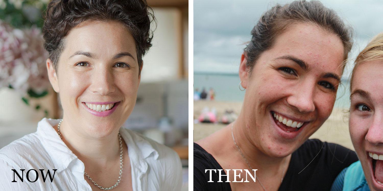 Jenny Barrow | Healing Acne the Holistic Way
